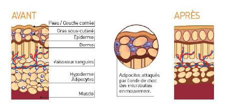 Réduction aspect cellulitique et amas graisseux